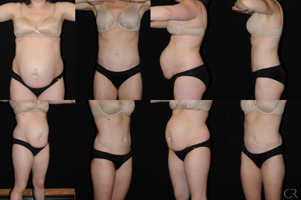 Abdominoplasty 11