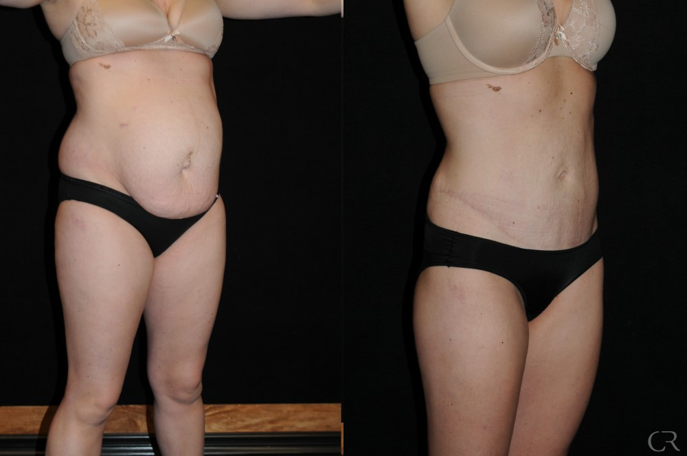 Abdominoplasty 13