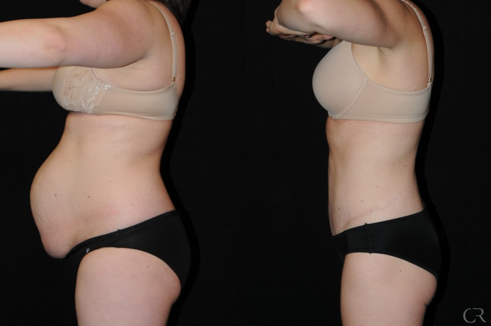 Abdominoplasty 15