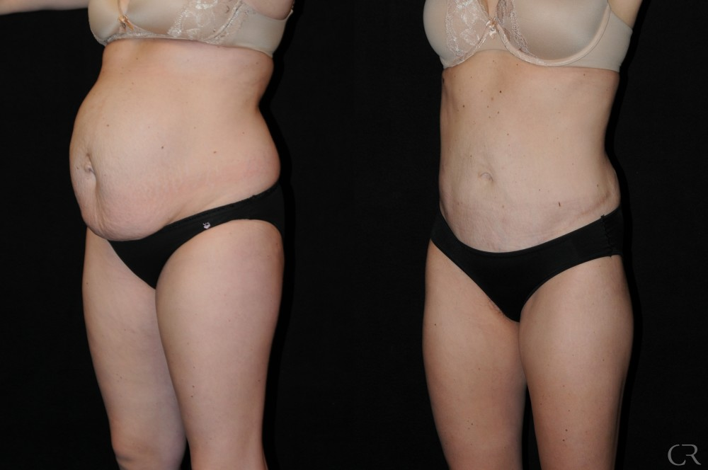Abdominoplasty 16