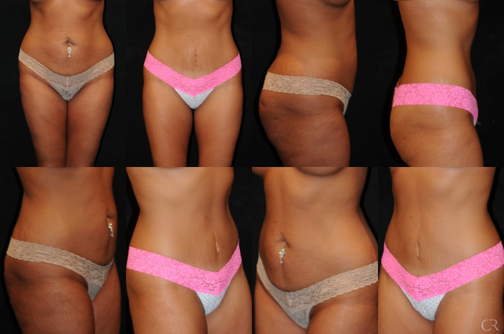 Abdominoplasty 17