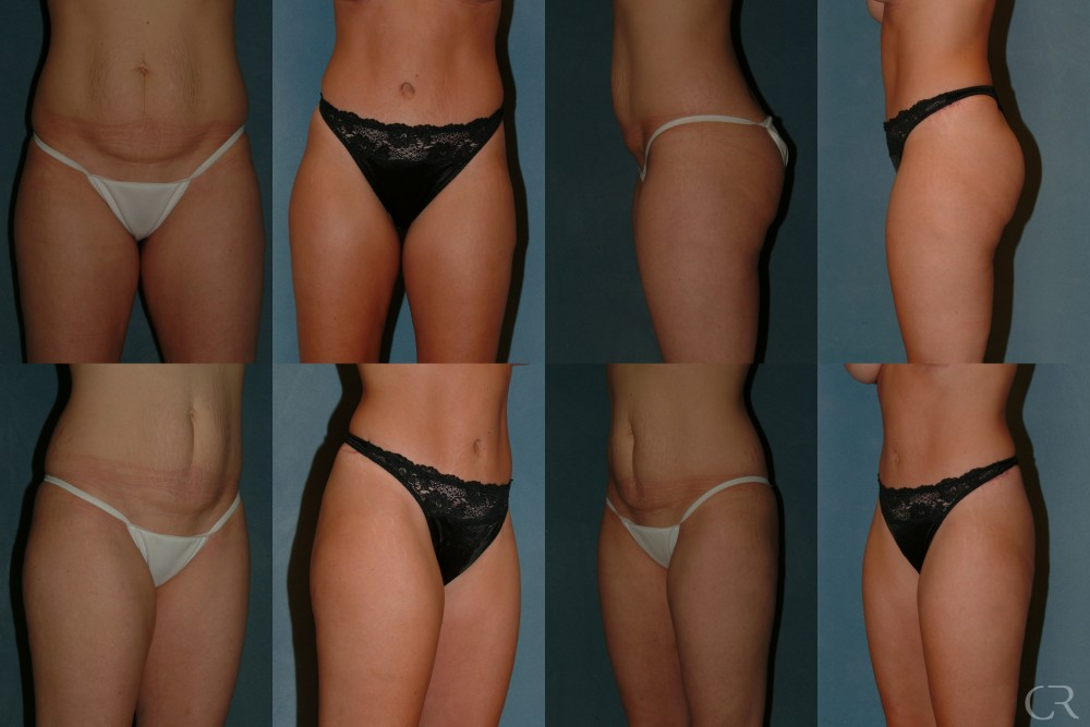 Abdominoplasty 21