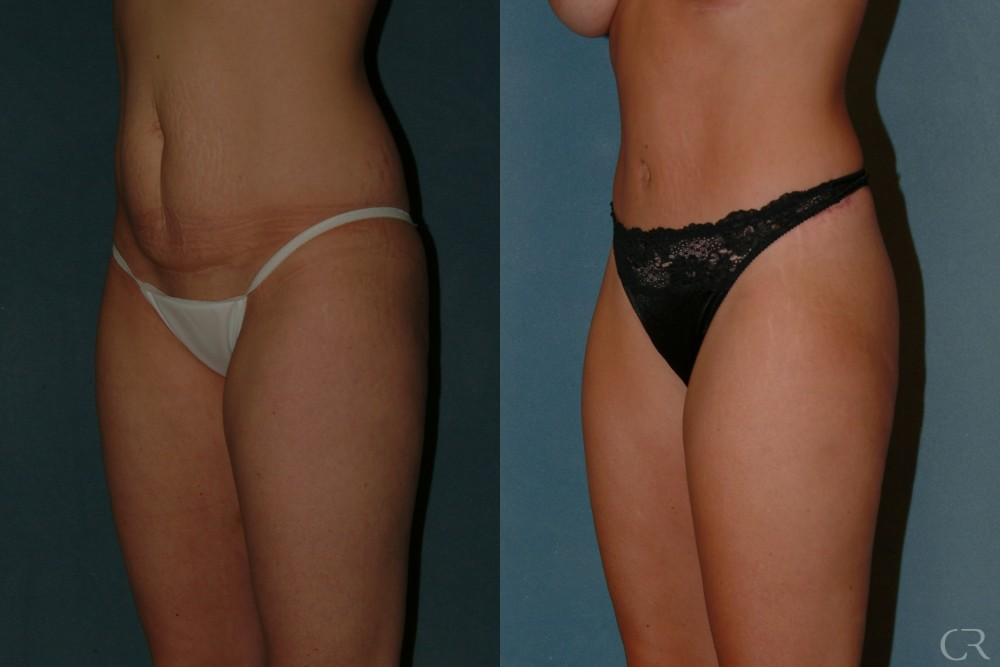 Abdominoplasty 22