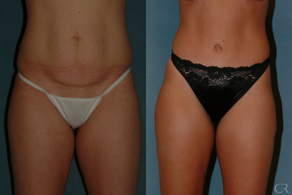 Abdominoplasty 23