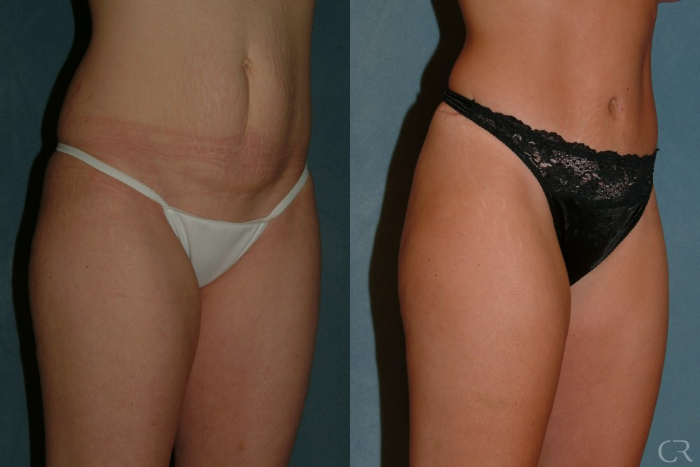 Abdominoplasty 24