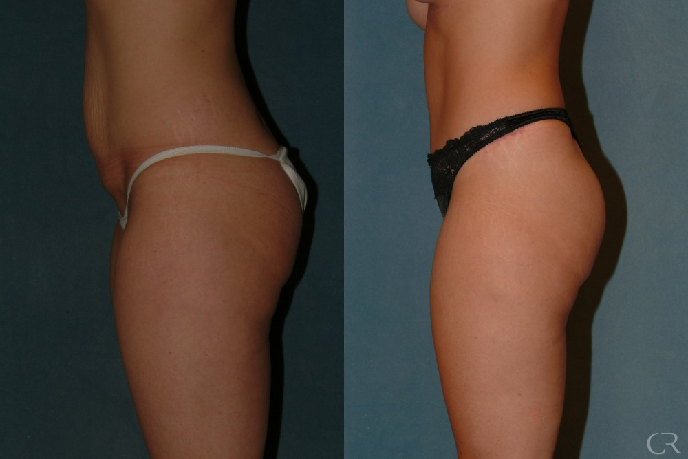 Abdominoplasty 25