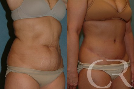 Abdominoplasty 26