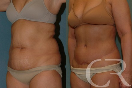 Abdominoplasty 27
