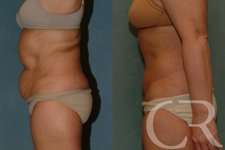 Abdominoplasty 28