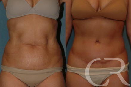 Abdominoplasty 29