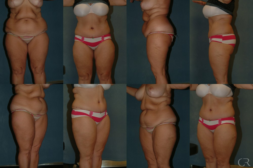Abdominoplasty 30