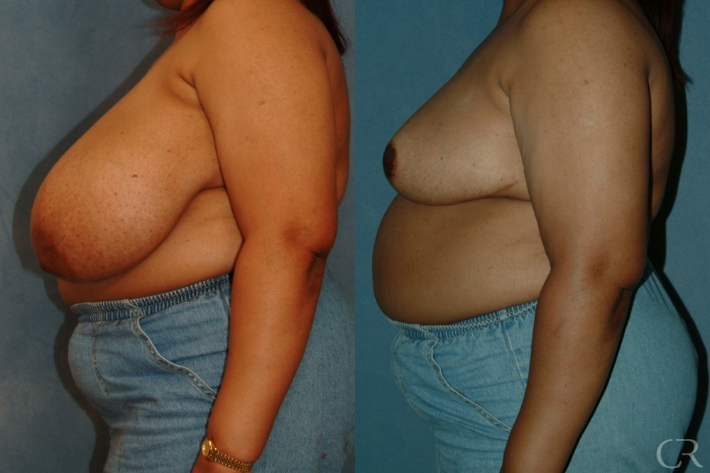 Breast Reduction 15