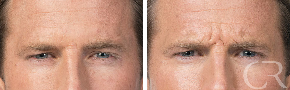 Botox for Men 4 Treatment of Corrugator muscle
