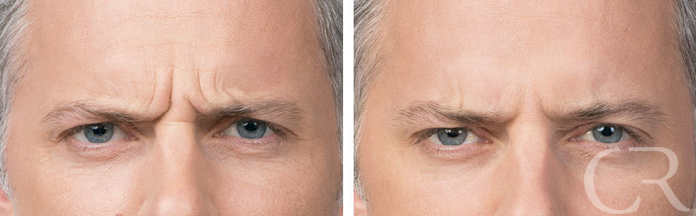 Botox for Men 5 Treatment of Corrugator muscles