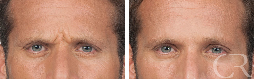 Botox for Men 6 Treatment of Corrugators