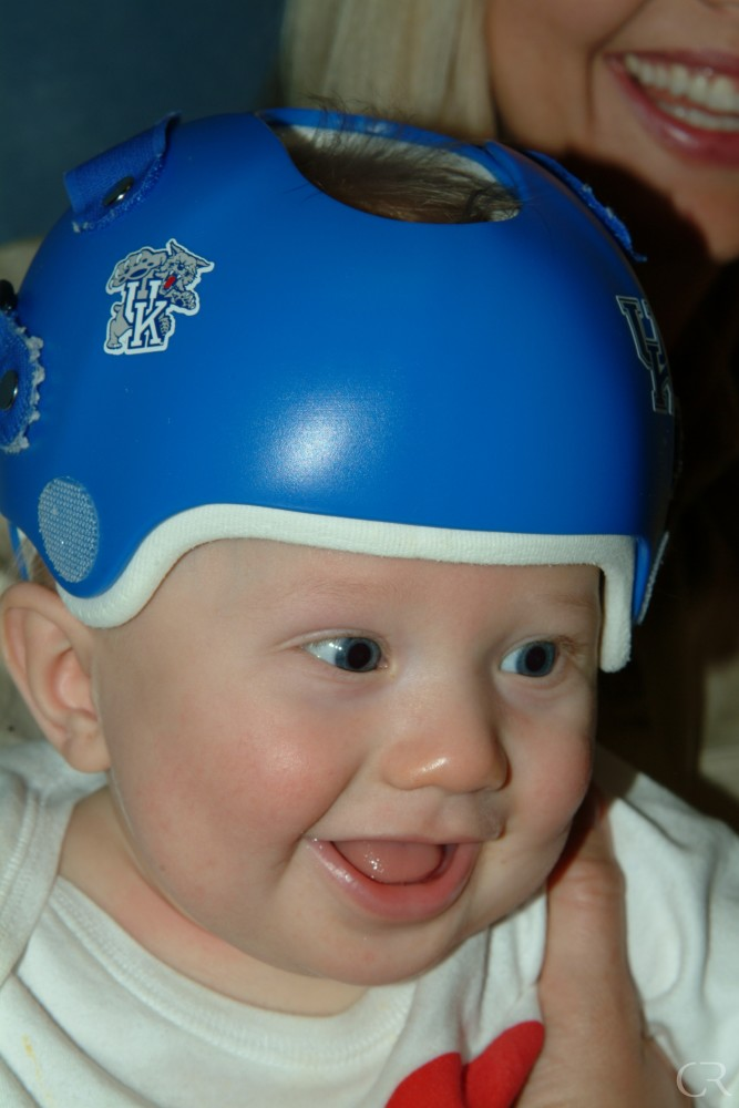 plagiocephaly kentucky center for cosmetic reconstructive surgery